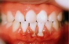 Gengiviti, Candidosi Orale